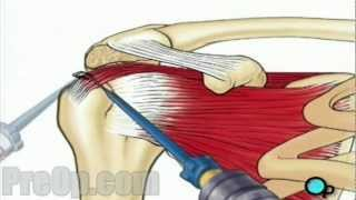 Rotator Cuff Repair Arthroscopic Surgery PreOp Patient Education