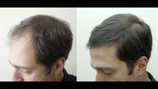 Process of Long Hair Transplant in Talizi