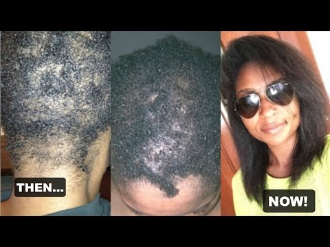 My Hair Loss: Alopecia Areata | JaMexicanBeauty
