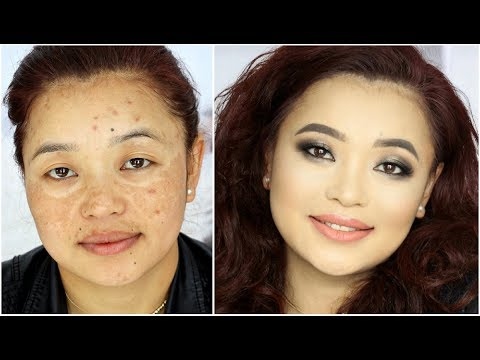 Makeup transformation for Hyper-Pigmentation / Acne Spots / Melasma