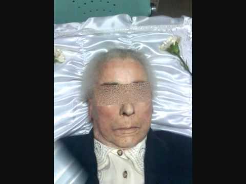 tratamento e reconstrução de cadaveres tanatoestética