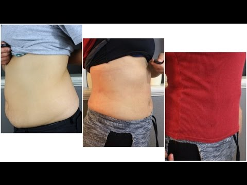 Instant Lipo Gel   Real Results   Yourcloset1   14 day Challenge