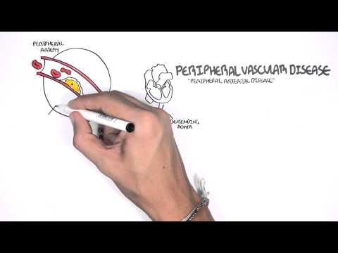 Cardiovascular Disease Overview thumbnail
