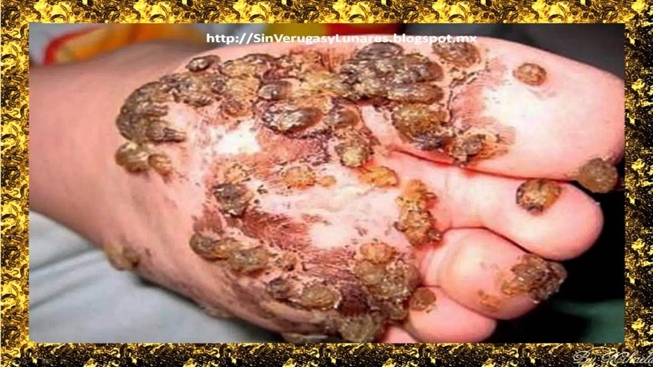 Fotos papiloma humano verrugas genitales 34