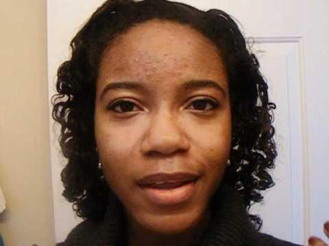 HITS & MISSES! Acne Spot Treatments