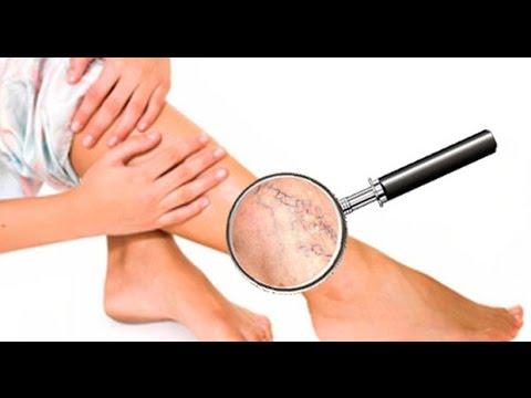 ✔ Лечение варикоза дома. Как лечить варикоз? Варикозное расширение вен!