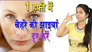 एक हफ्ते में चेहरे की झाइयां दूर करें Home Remedies For Face Pigmentation | Jhaiya Hatane Ke Upchar