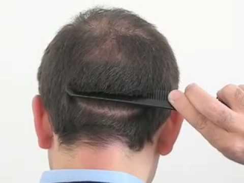 Autotrapianto capelli forum