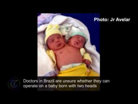 Amazing story of healthy two-headed baby born in Brazil