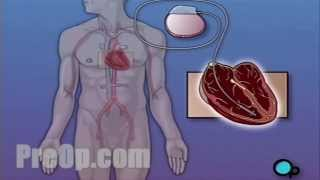 Permanent Pacemaker Implant Surgery PreOp® Patient Education