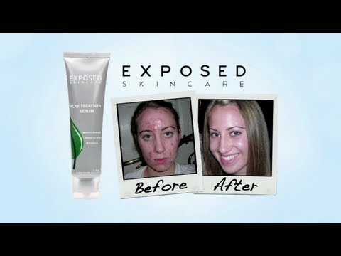 Exposed Skin Care - The Best Acne Treatment