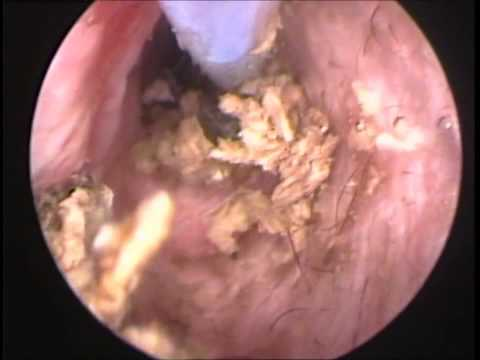 Chronic Ear Infection