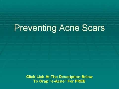 Preventing Acne Scars