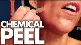 Peeling Joslyn's Face Off?! (Beauty Trippin)