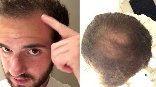 BALDING SINCE 17 - *My Experience With Going Bald 17-19 Years Old