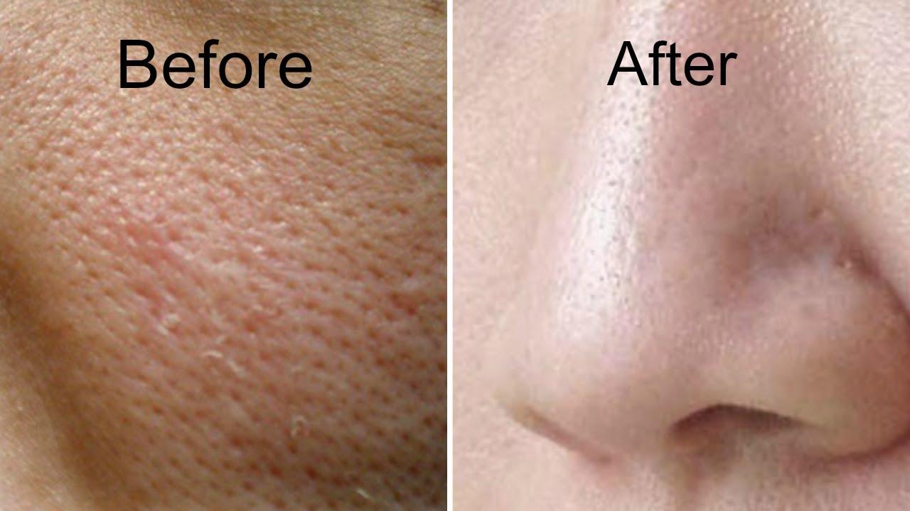 How to Close Pores