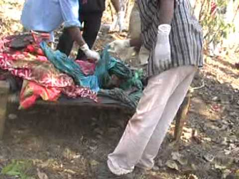 Post Mortem Of Tribal Girls In Singaranm Chhattisgarh Raped And Killed By Police. video