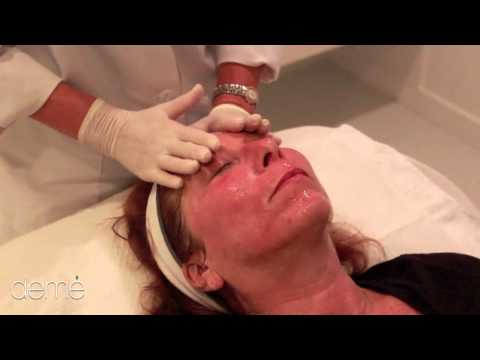 IPL and Pixel treatment to treat acne scars, sun damage & rosacea at deme