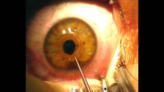 Implantation of Intrastromal  Corneal Ring Segments for  Keratoconus