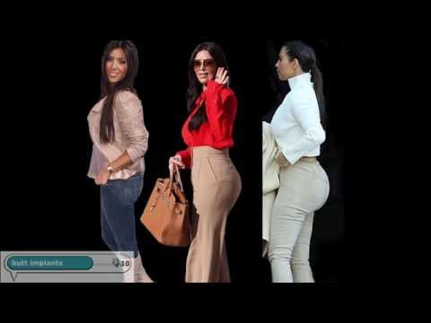 Kim Kardashian's Plastic Surgery Transformation video