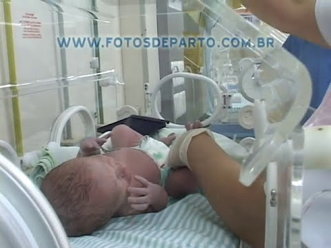 Vídeos de Parto Cesárea - Video 2