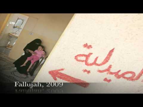 DU weapons in Iraq; drastic birth defects in Fallujah