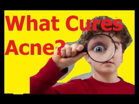 What Cures Acne ?  ▬ BEST Natural Acne Cures REVEALED ▬▬