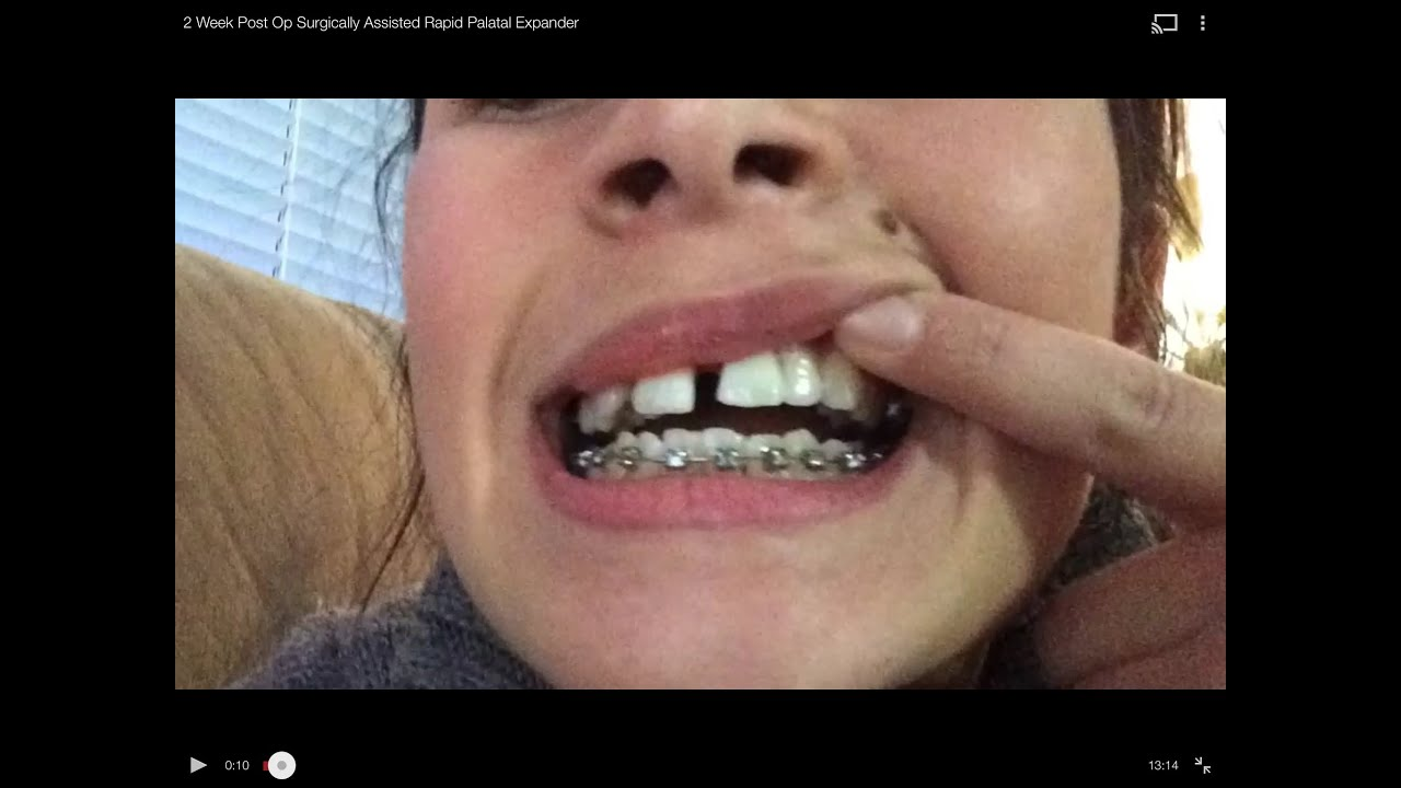Week post op surgically assisted rapid palatal expander youtube