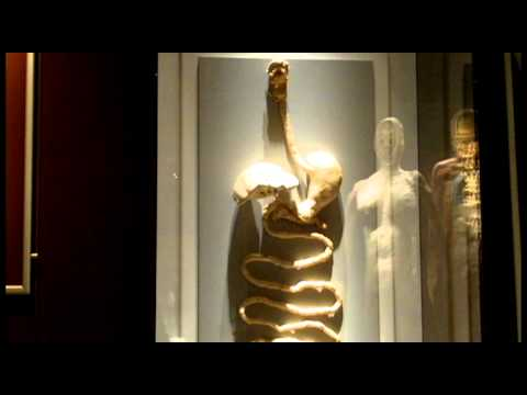 Irishtimes.com: The Human Body Exhibition, Dublin