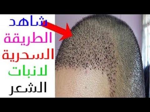 ضعيها لفرغات شعرك و الصلع  سبحان لله النتيجة ستبهرك تنبت الشعر وتملأ الفراغات من اول استعمال