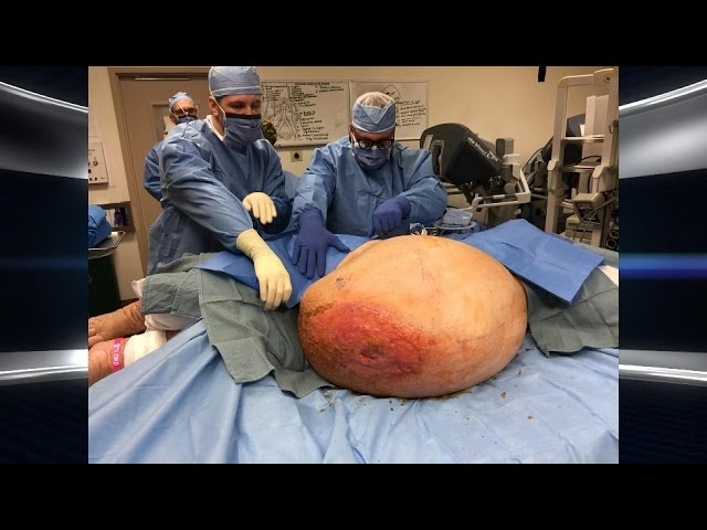 Woman's 140-Pound Tumor Removed