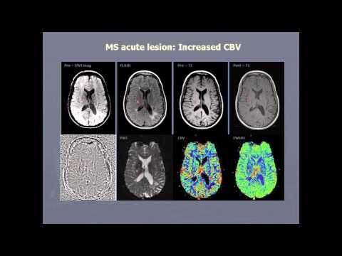 Breakthroughs in Imaging Neurovascular Diseases