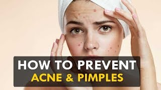 How To Prevent Acne & Pimples - Health Sutra