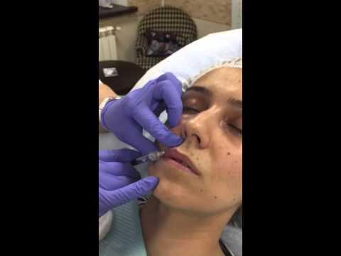 Инъекционная косметология. Работа врача.