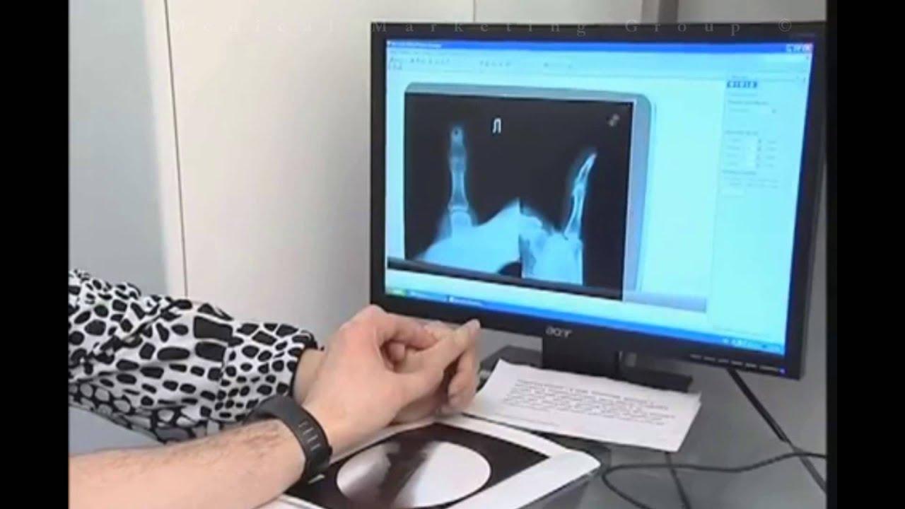 Смотреть в ютубе осмотр гинеколога 26 фотография