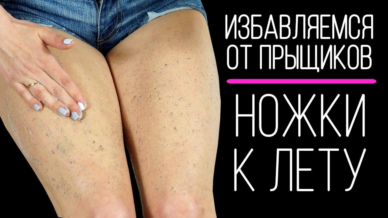 Как в домашних условиях избавиться от гусиной кожи 366