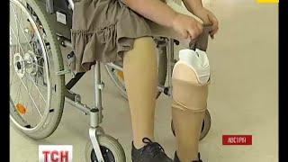 Волонтерка з України потребує коштів на протези ніг - (видео)