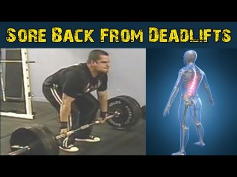 Back Soreness After Deadlifts Image 1