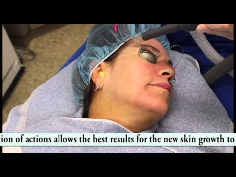 San Diego, CA Acne Scar Removal Treatment:Fair Skin