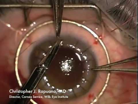Penetrating Keratoplasty (PK) for Post LASIK Ectasia and Hydrops