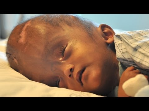 Swollen Head Baby Leaves Hospital After Successful Surgery SUBSCRIBE: http://bit.ly/Oc61Hj THE baby whose head swelled to three times its natural size has be...