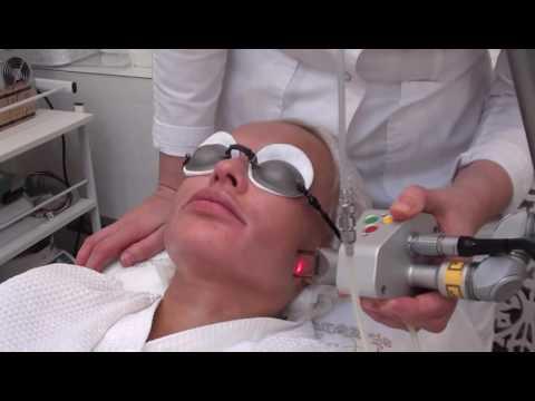 Лазерный шлифовка кожи лица