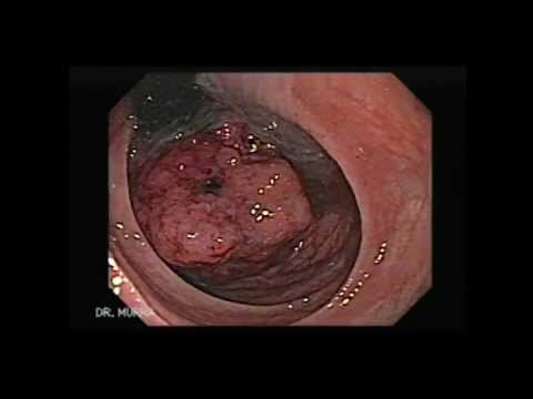 Colonoscopy Of A Rectal Cancer Youtube