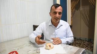 Tekirdağ Çorlu'da Ekmekten Yara Bandı Çıktı İddiası