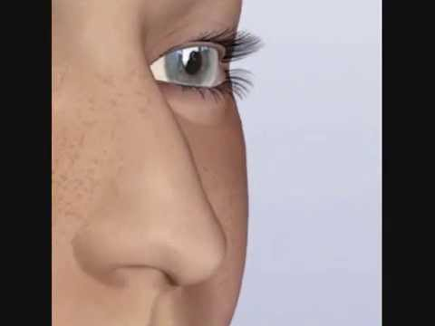 Nose Job Alternative: Nose Huggie - Get a smaller nose in 2 weeks.
