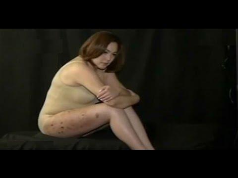 Claudine Barretto Ipinakita Ang Mga Sugat At Peklat Sa Hita video