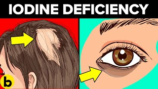 7 Signs You Have An Iodine Deficiency