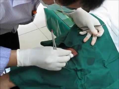 ผ่าตัดซีสต์ A sebaceous cyst surgically removed.