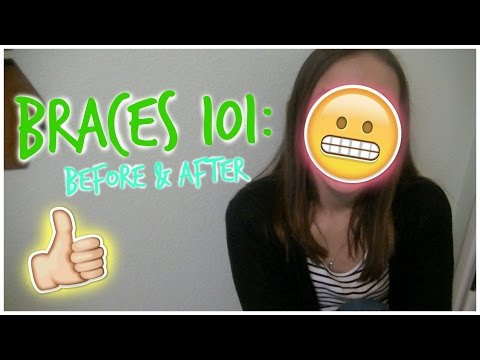 Braces 101: Before & After!