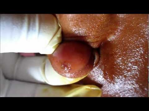 Sebaceous Cyst Ear Lobe- Draining